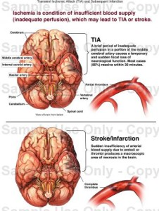 Transient-ischemic-attack
