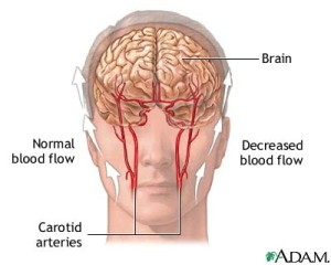 normal abnormal blood flow to brain