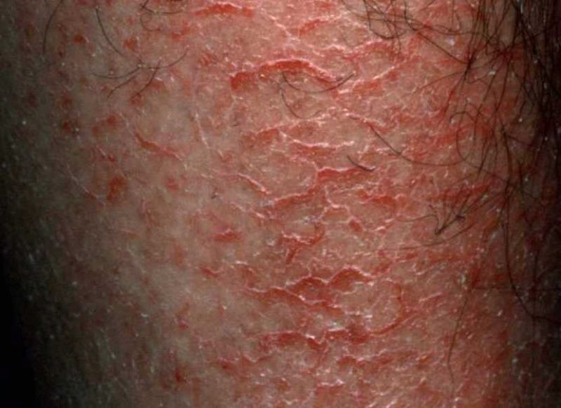 Drinking Hot Warm Water Cause Bleeding