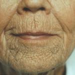 wrinkles7
